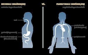 enterale oder parenterale Ernährung - ein Überblick