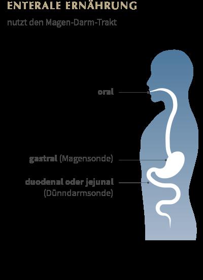 Enterale Ernährung Grafik